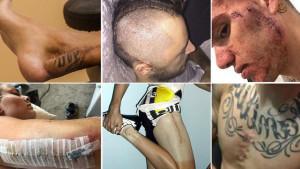 Nije sve idealno kada ste bogati i slavni: Horor povrede poznatih sportista