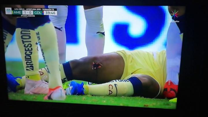 Noga bivšeg igrača Barcelone je izgledala užasno nakon brutalnog starta protivničkog igrača