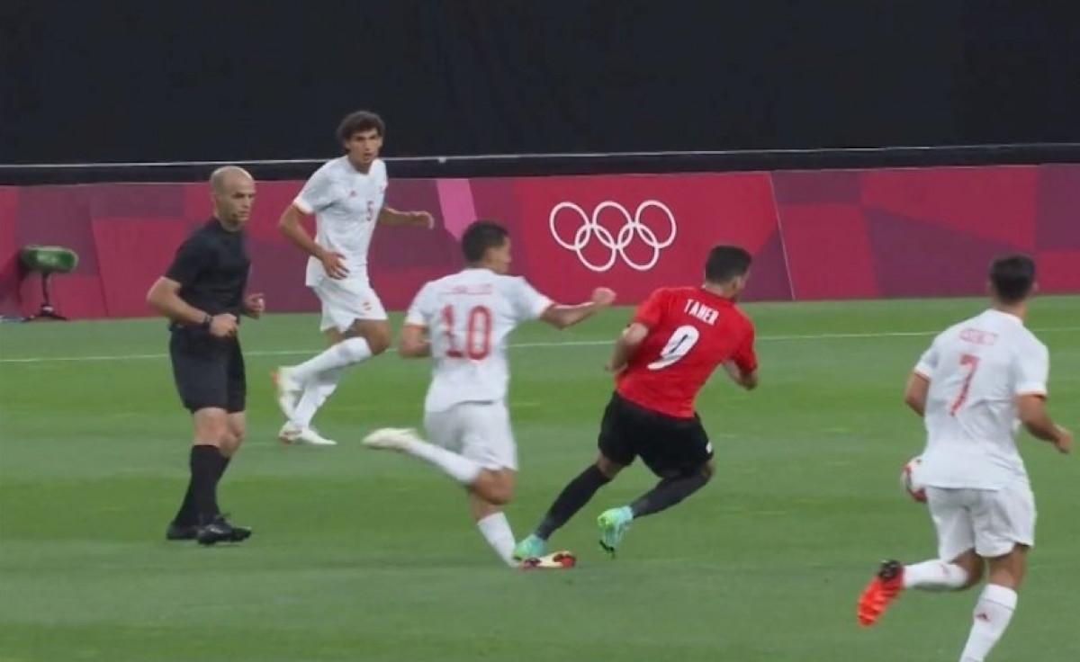 Zglob igrača Reala izgleda užasno