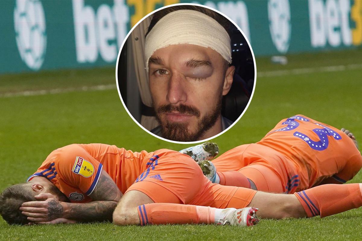 Zaradio stravičnu povredu, ali je imao poruku za svog saigrača: Tvoja glava je napravljena od betona