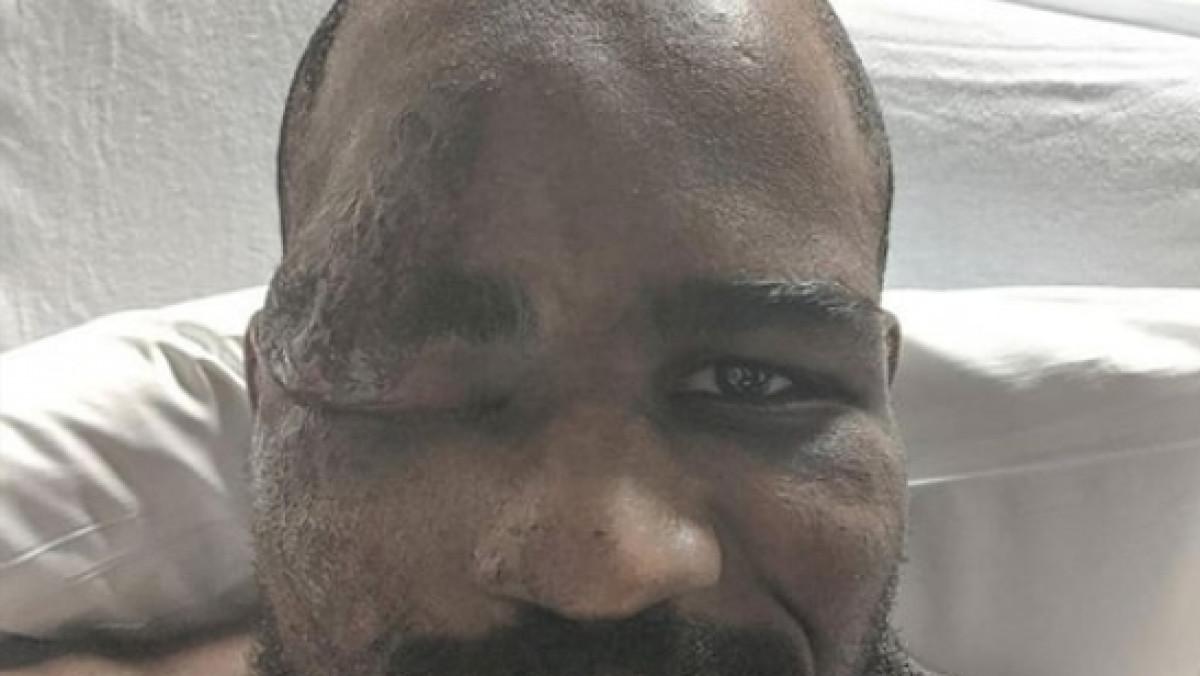 Prava drama i stravične povrede UFC zvijezde: Odjednom mi se zamračilo...