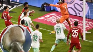 Fudbaler Bayerna kao da ima ciglu u butnom mišiću!
