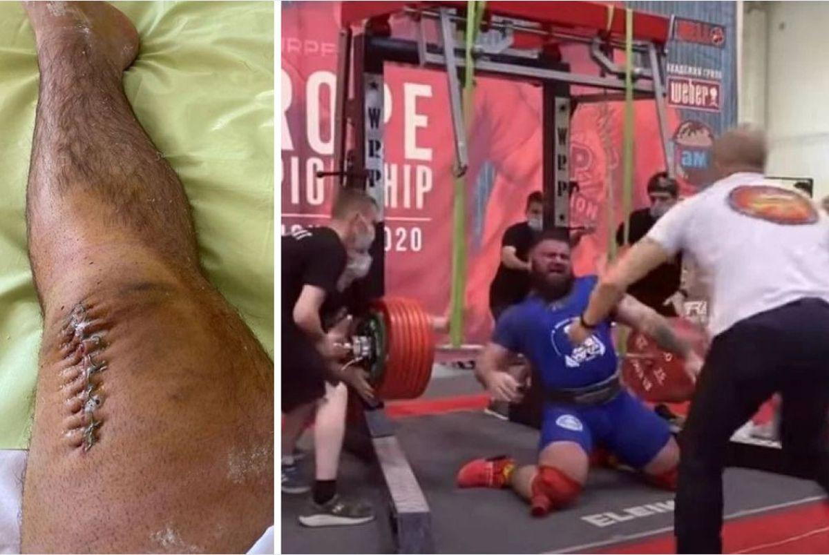 Rus kojem su nedavno pukla oba koljena objavio fotografiju poslije operacije: Jednom riječju - užas!
