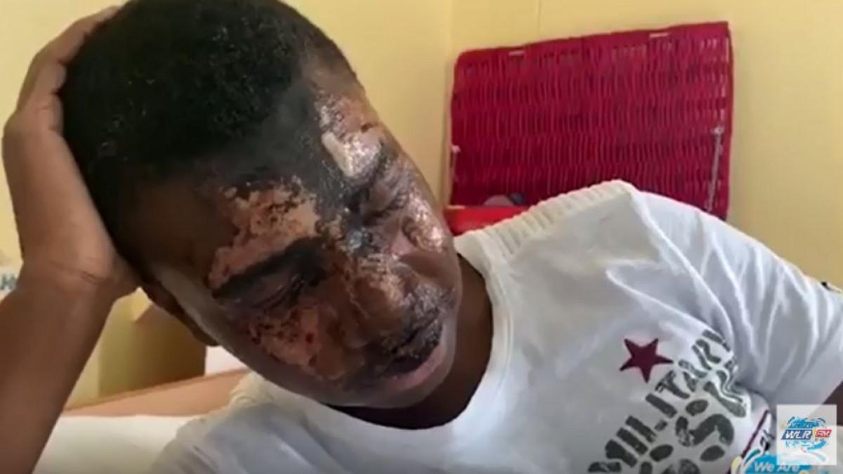 Napali 16-godišnjeg fudbalera, posuli ga kiselinom, pa završili na slobodi