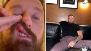 McGregor napravio novi skandal: Conor u Rimu pretukao italijanskog pjevača