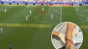 Modrić kao da ne postoji: Nedavno je zaradio 15 šavova, a danas je Realu zabio gol karijere!