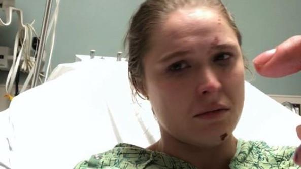 Ronda Rousey doživjela stravičnu povredu na snimanju serije