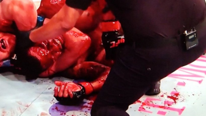 UFC ne pamti krvaviju borbu