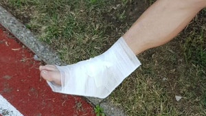 Igrač Veleža doživio neugodnu povredu, ali odlučio da se iz bolnice vrati na Tušanj