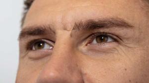 Šta se krije iza Bičakčićevog 'posebnog' ožiljka?