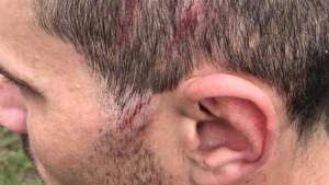 Fudbaler Gornjih Rahića dobio udarac kramponom u glavu, pa njegov klub objavio fotografiju