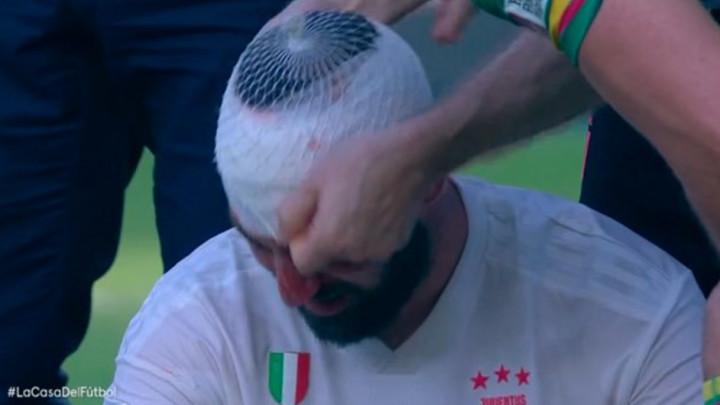 Higuain nastavio igrati sa teškom povredom glave, pa se srušio nakon meča