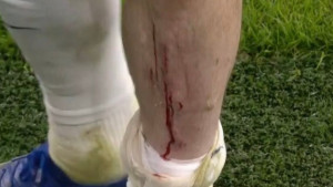 Mourinho ima pravog ratnika u ekipi: Noga mu je krvava, a sa Joseom se raspravlja jer ne želi izaći