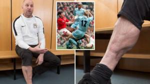 """Na Old Traffordu doživio pakao: """"Imao sam 22 operacije i doktori su mi rekli da ću izgubiti nogu"""""""