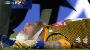 Trenutak kada je nastao muk na San Paolu: Ospina zbog teške povrede završio u bolnici