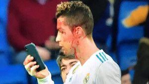 Ronaldov izlazak sa današnje utakmice je apsolutni hit