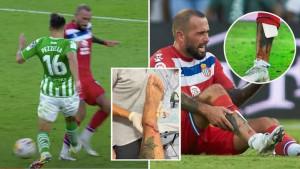 Dobio 15 šavova na nozi nakon utakmice, a sada otkriveno da je nosio kartonske kostobrane