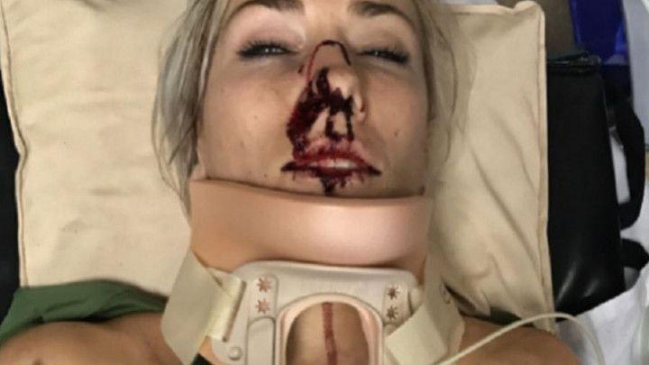 Svjetska prvakinja u biciklizmu doživjela nesreću, pa svojom fotografijom šokirala mnoge
