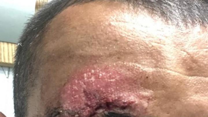 Objavljene uznemirujuće fotografije teško pretučenog igrača Slavena