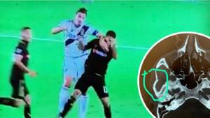 Ibrahimović udario protivnika laktom i razbio mu lobanju