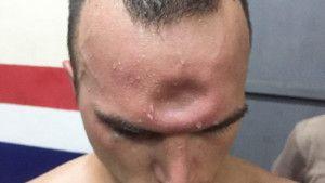 Borac doživio stravičnu povredu glave
