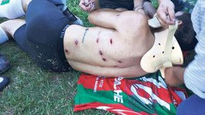 Policijska brutalnost nekad nema granicu: Izrešetan nogometaš