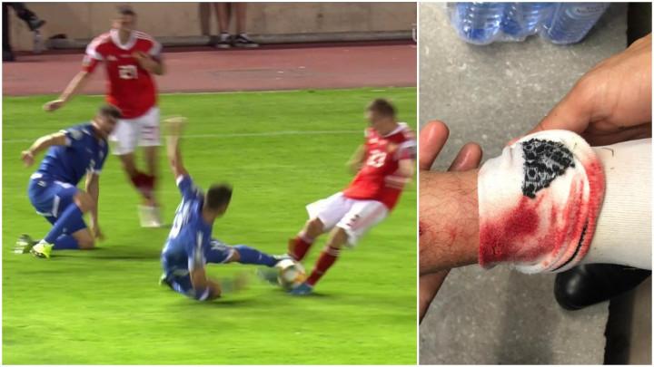 Start za zatvor Kipranina je ostavio posljedice: Pogledajte kako je izgledala noga ruskog igrača