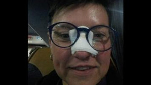 Eleni Ronaldo slomio nos, ona sada samo traži da je odvede na večeru