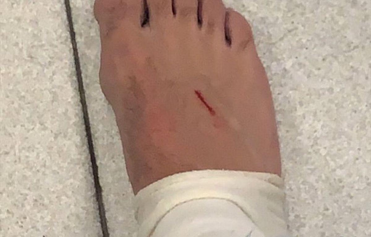 """Pjanić objavio fotografiju s posjekotinom na stopalu: """"Nije faul"""""""